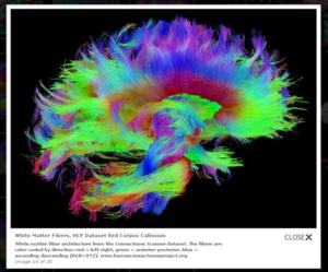 neuroimagen 2